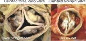 calcified-valves