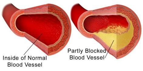 blocked-blood-vessel
