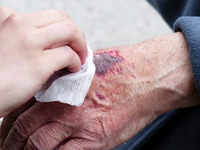 hand skin tear Pixabay