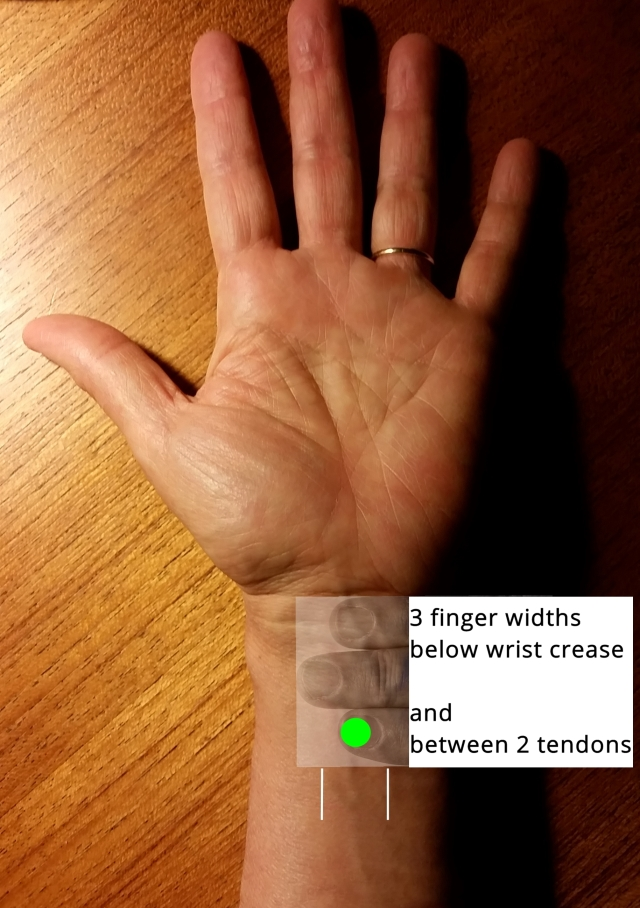 wrist P6 relieves nausea insomnia
