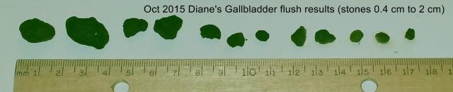 gallstones 10 20 15