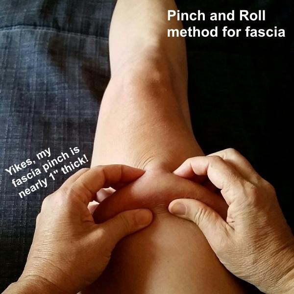 thigh fascia pinch